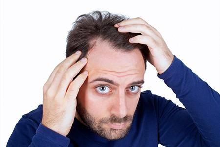 Cause della perdita capelli uomo