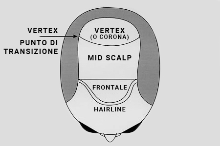 aree della tricopigmentazione, frontale, mid scalp, corona